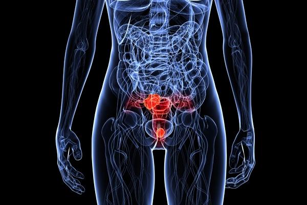 Az ösztrogéntapaszok bevethetőnek bizonyulhatnak a prosztatarák ellen