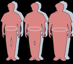 Riasztóan elterjedt az elhízás az iparilag fejlett országokban
