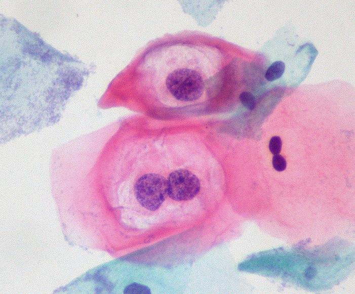 Amit a HPV-ről tudni kell