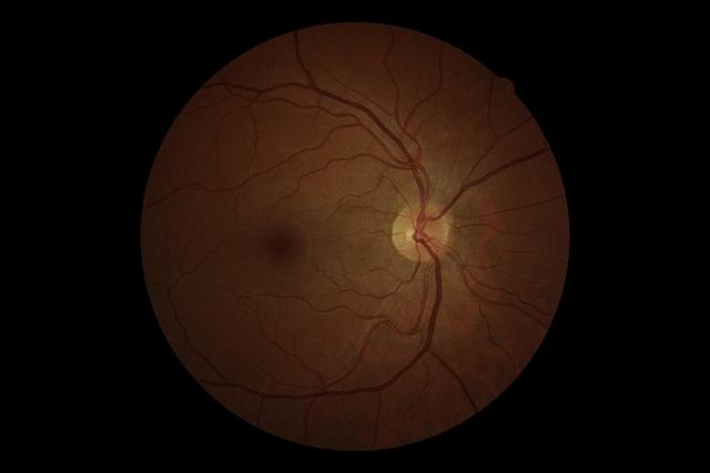 Glaukóma? Irány a szemész!