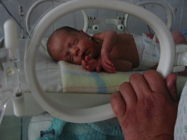 Veseelégtelenség: végre egy dialízis készülék csecsemőknek