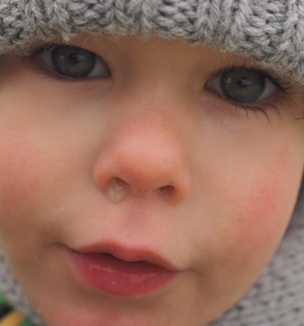 a gyermek orra