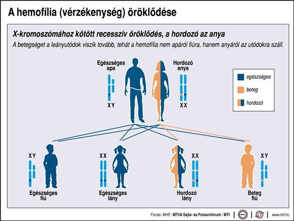 A hemofília (vérzékenység) öröklődése