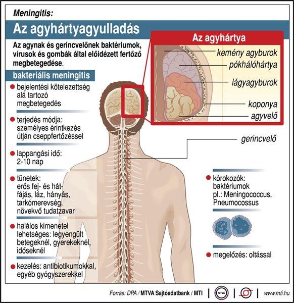 Meningitis: Az agyhártyagyulladás