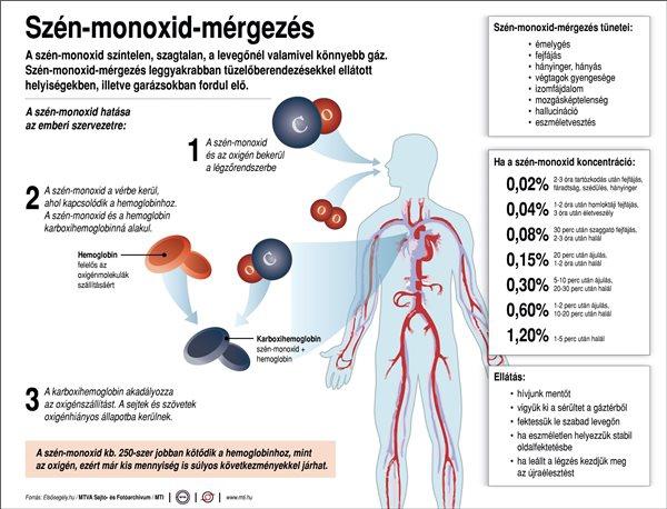 Szén-monoxid-mérgezés