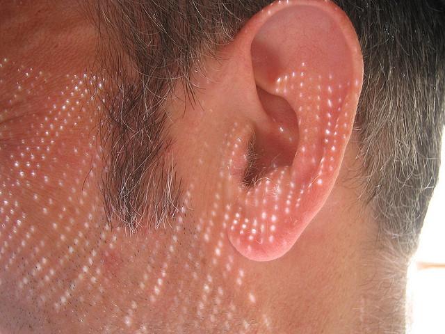 Fülápolási tanácsok a vizisportok szerelmeseinek