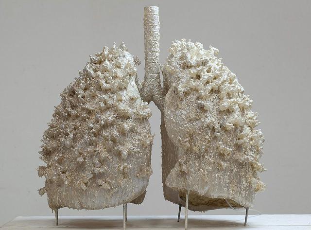 Milyen oltások javasolhatók krónikus légúti megbetegedéssel élők számára?