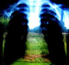 Évente akár húsz tüdőtranszplantációt is végezhetnek hazánkban