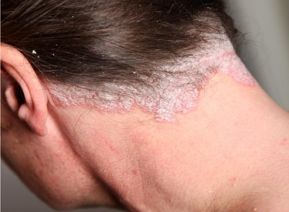 Palmar és plantáris psoriasis - a betegség kezelése és fényképe - Arthritis November