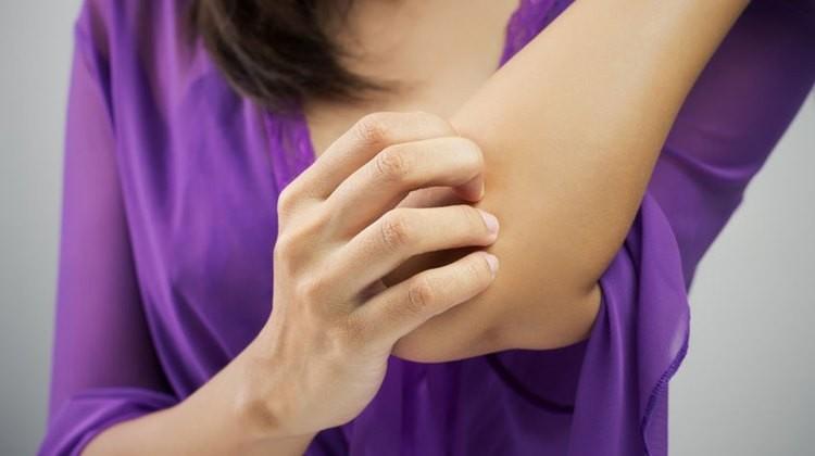 Bőrgyógyász: fehérjehiány okozhatja a gyermekkori ekcémát