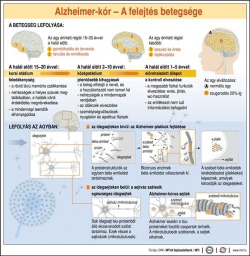 Alzheimer-kór: a felejtés betegsége